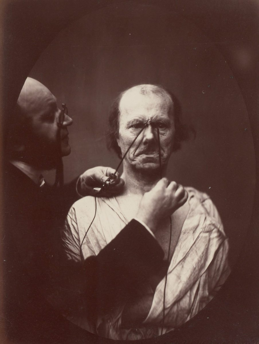 Duchenne de Boulogne, Study from 'The Mechanism of Human Facial Expression' 18', 1856-57 with Robert Hershkowitz
