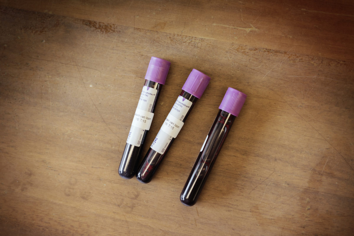 Jeroen van Loon, Cellout.me; Result: three vials of blood. Photo by Erik Borst